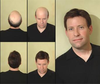 Hair replacement for men millennium hair pmusecretfo Gallery